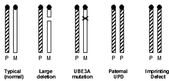 A five-part diagram shows chromosome 15 in its typical (normal) form, with a large deletion, with a UBE3A mutation, with paternal UPD, and with an imprinting defect. The chromosome pairs are depicted as two vertical rectangles arranged in parallel. Some of the rectangles are solid white and some have a black-and-white hatched pattern. The paternal and maternal chromosome in each pair are labeled with a P and an M, respectively.